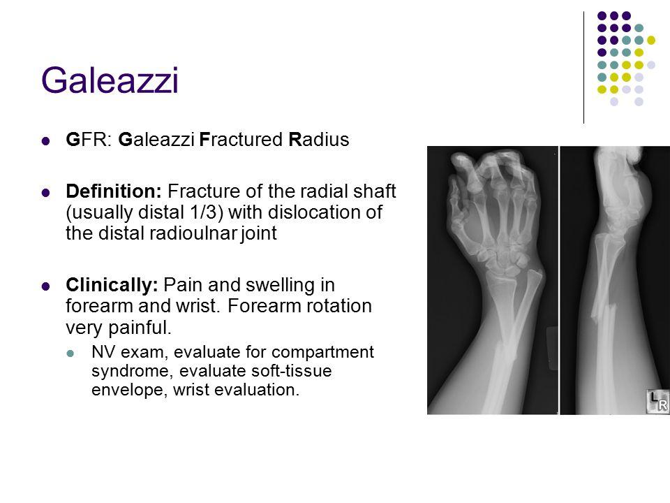 Galeazzi GFR: Galeazzi Fractured Radius