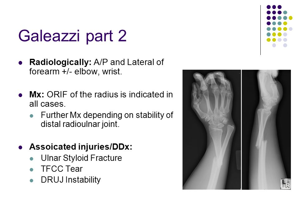 Galeazzi part 2 Radiologically: A/P and Lateral of forearm +/- elbow, wrist. Mx: ORIF of the radius is indicated in all cases.