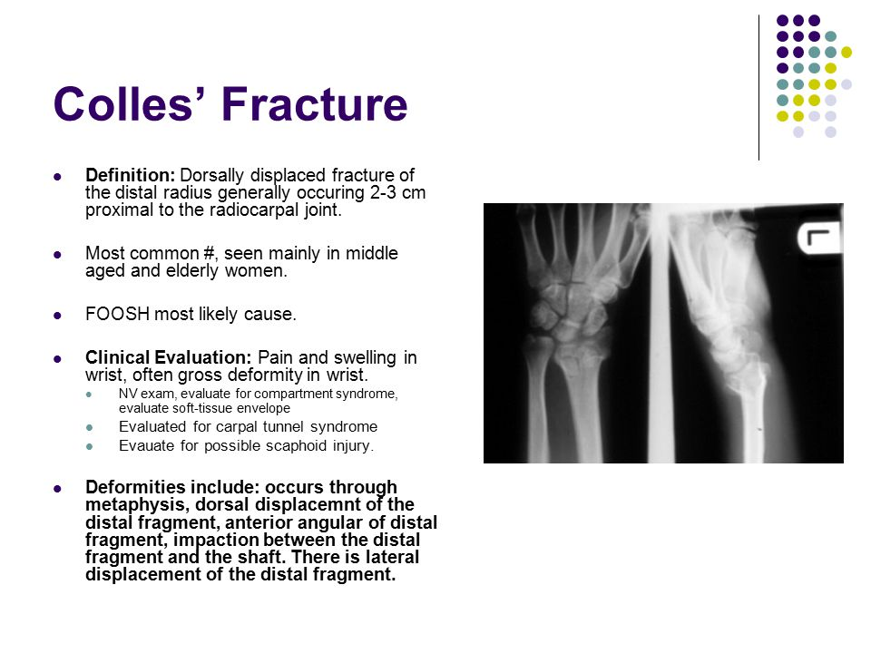 Colles' Fracture Definition: Dorsally displaced fracture of the distal radius generally occuring 2-3 cm proximal to the radiocarpal joint.