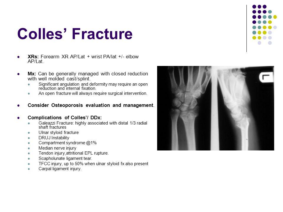 Colles' Fracture XRs: Forearm XR AP/Lat + wrist PA/lat +/- elbow AP/Lat.