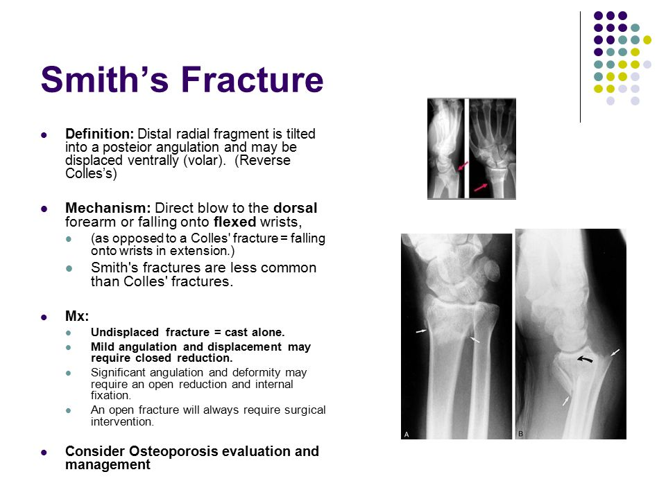 Smith's Fracture Definition: Distal radial fragment is tilted into a posteior angulation and may be displaced ventrally (volar). (Reverse Colles's)