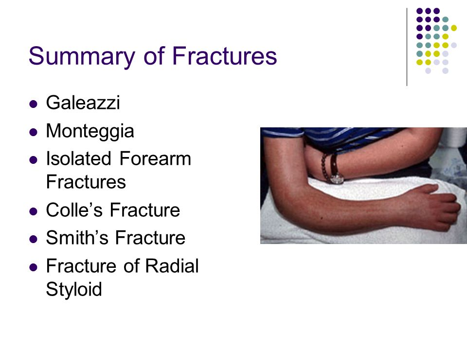Summary of Fractures Galeazzi Monteggia Isolated Forearm Fractures