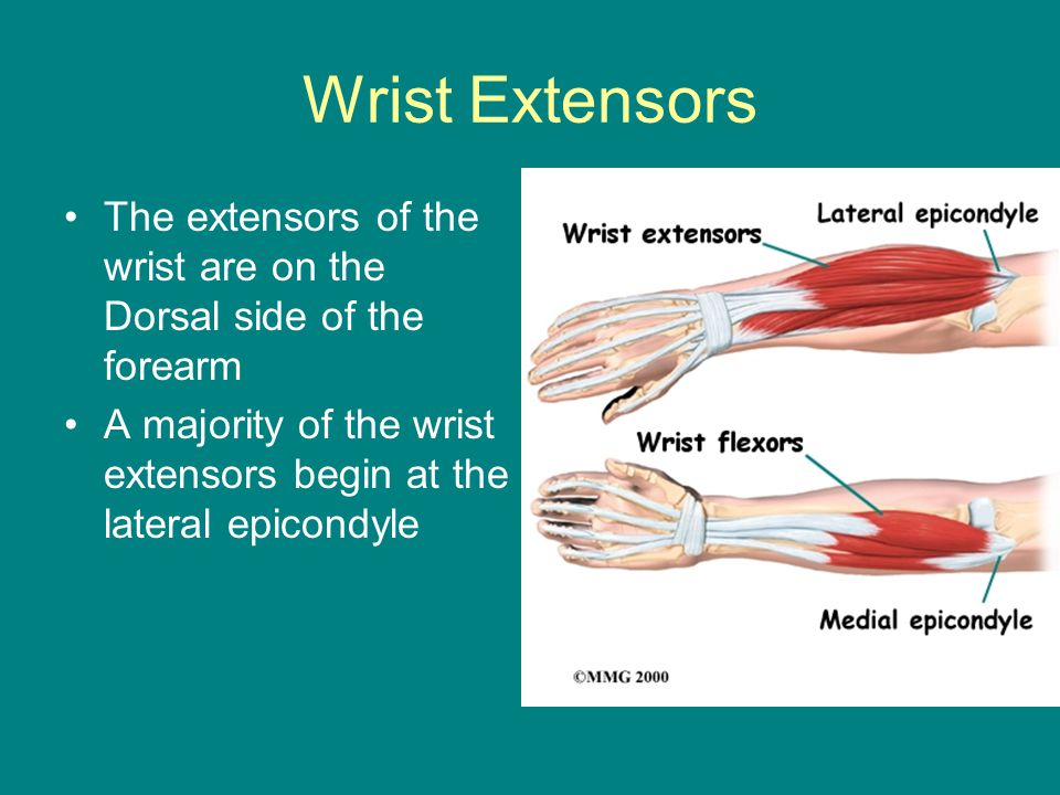 Wrist Extensors The extensors of the wrist are on the Dorsal side of the forearm.