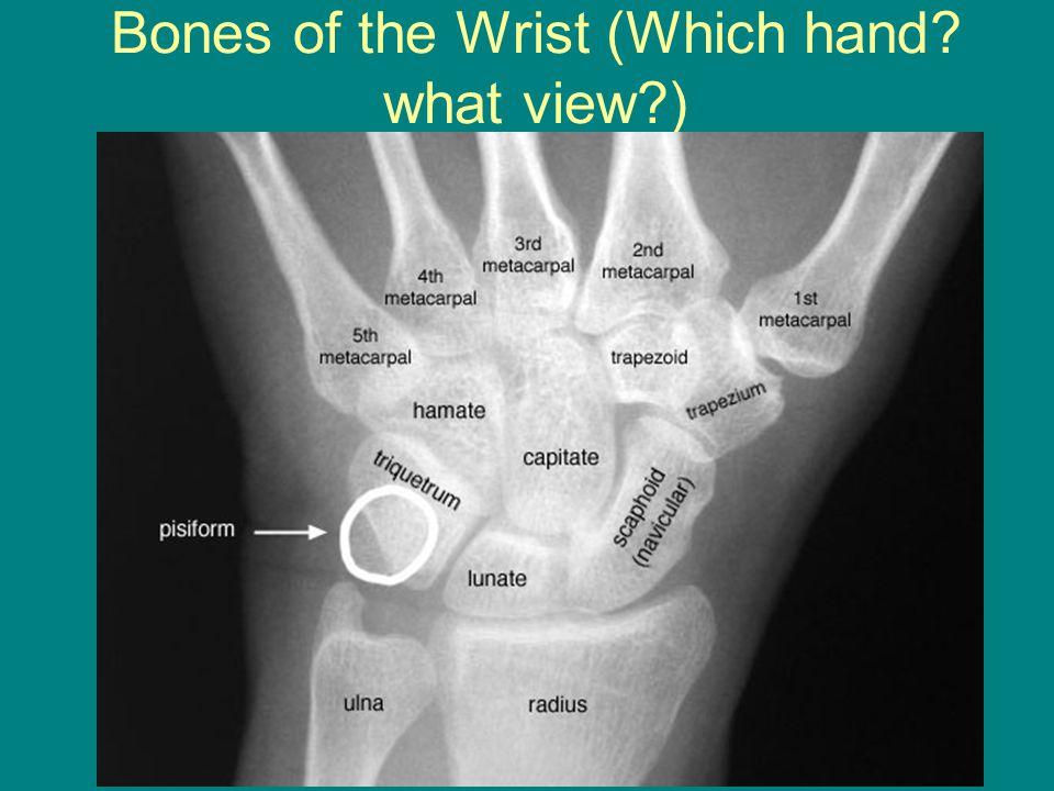 Tarsal bones (mnemonic) | Radiology Reference Article ...