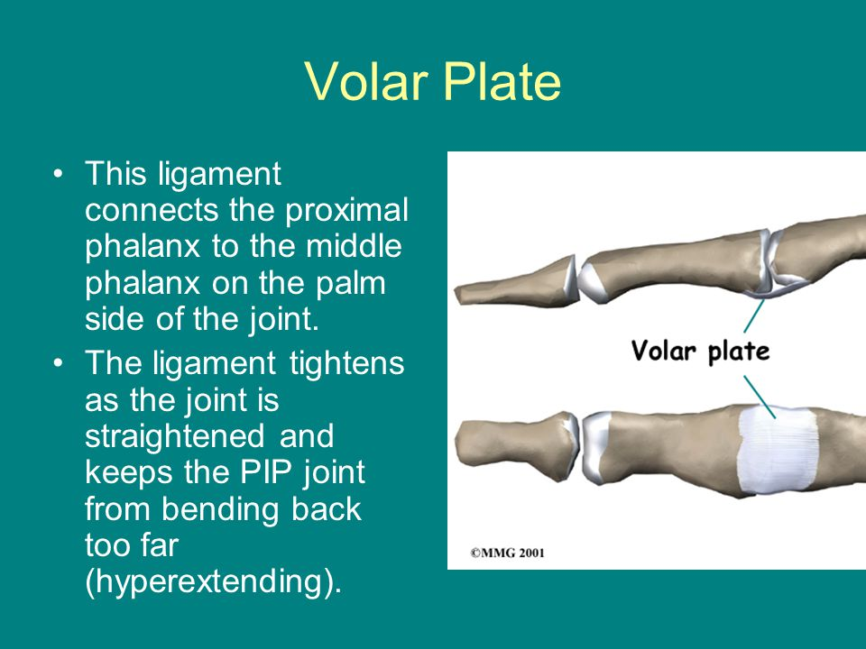 Volar Plate This ligament connects the proximal phalanx to the middle phalanx on the palm side of the joint.