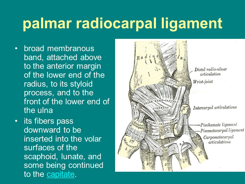 palmar radiocarpal ligament