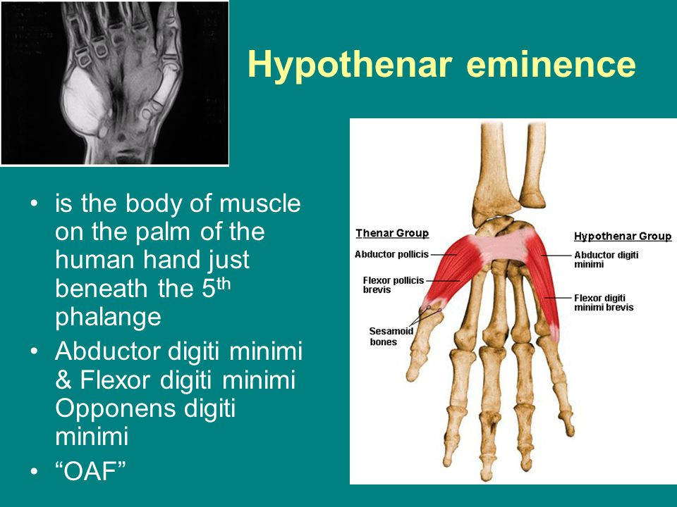 Anatomy Of The Hand And Wrist Ppt Video Online Download