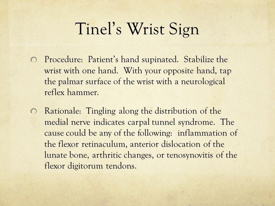 Tinel's Wrist Sign