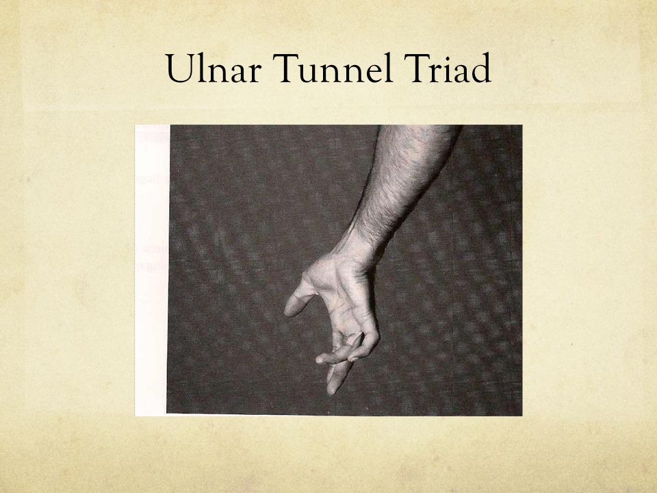 Ulnar Tunnel Triad