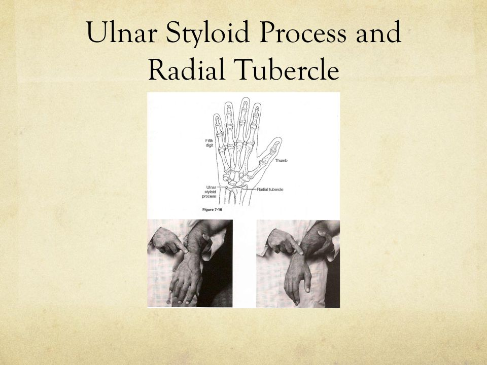 Ulnar Styloid Process and Radial Tubercle