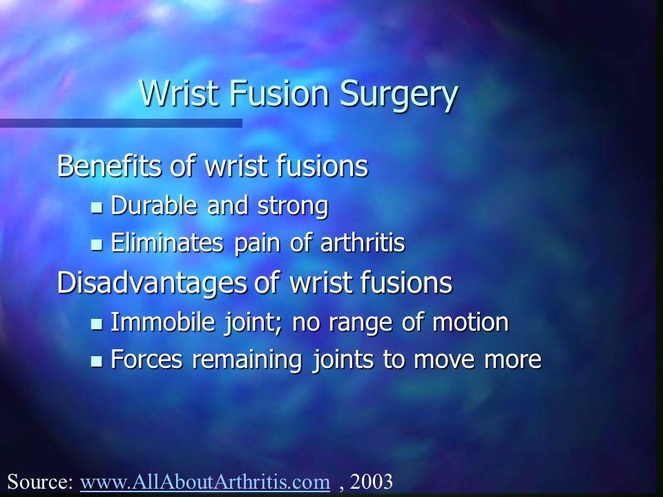 Wrist Fusion Surgery Benefits of wrist fusions