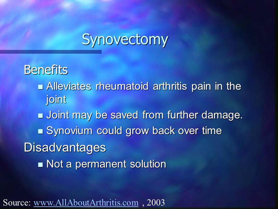 Synovectomy Benefits Disadvantages
