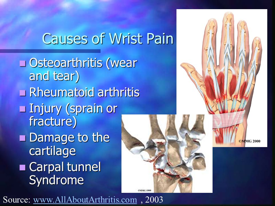 Causes of Wrist Pain Osteoarthritis (wear and tear)