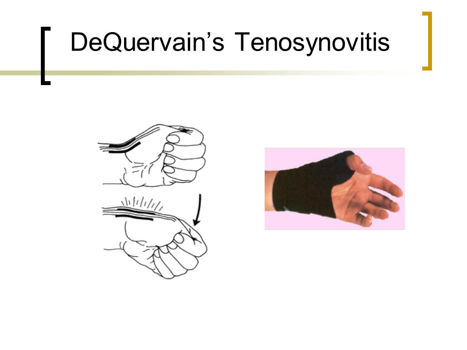 DeQuervain's Tenosynovitis
