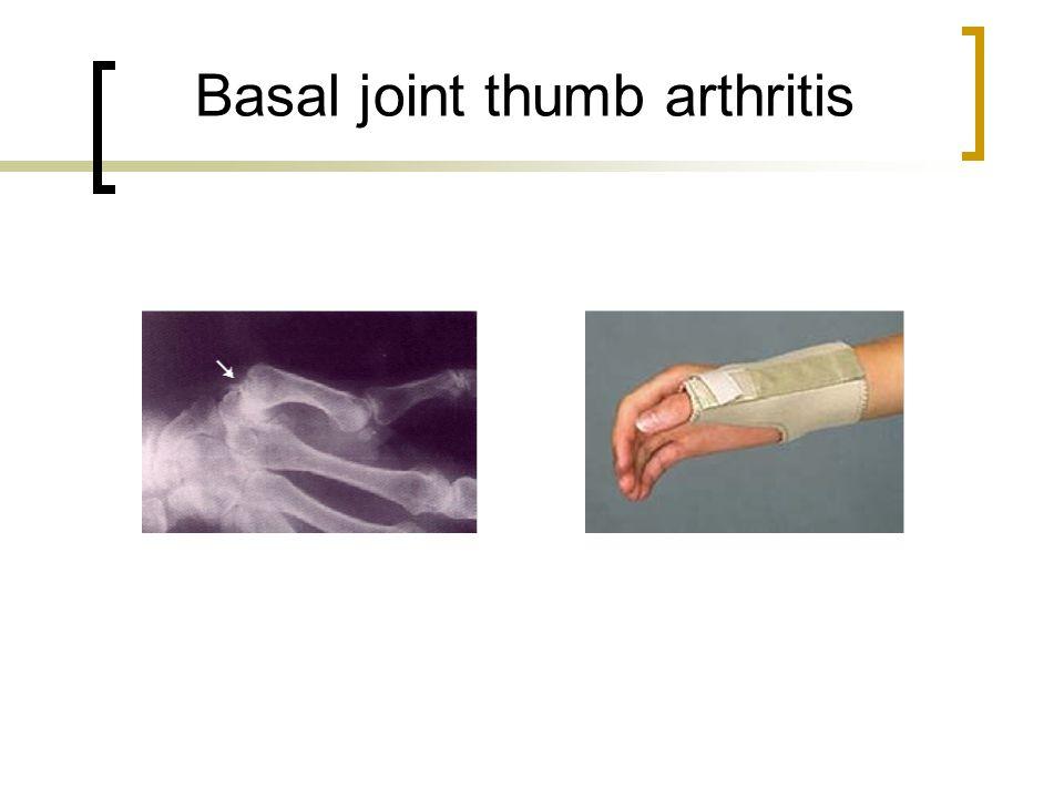 Basal thumb arthritis - National Center for
