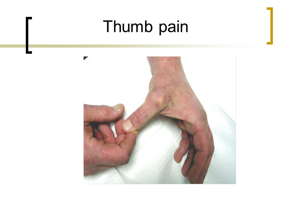 Ulnar collateral ligament of thumb pain