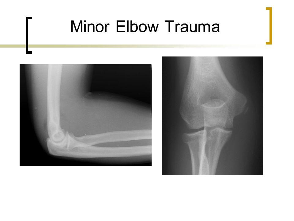 Minor Elbow Trauma