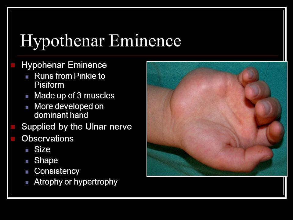 Hypothenar Eminence Hypohenar Eminence Supplied by the Ulnar nerve