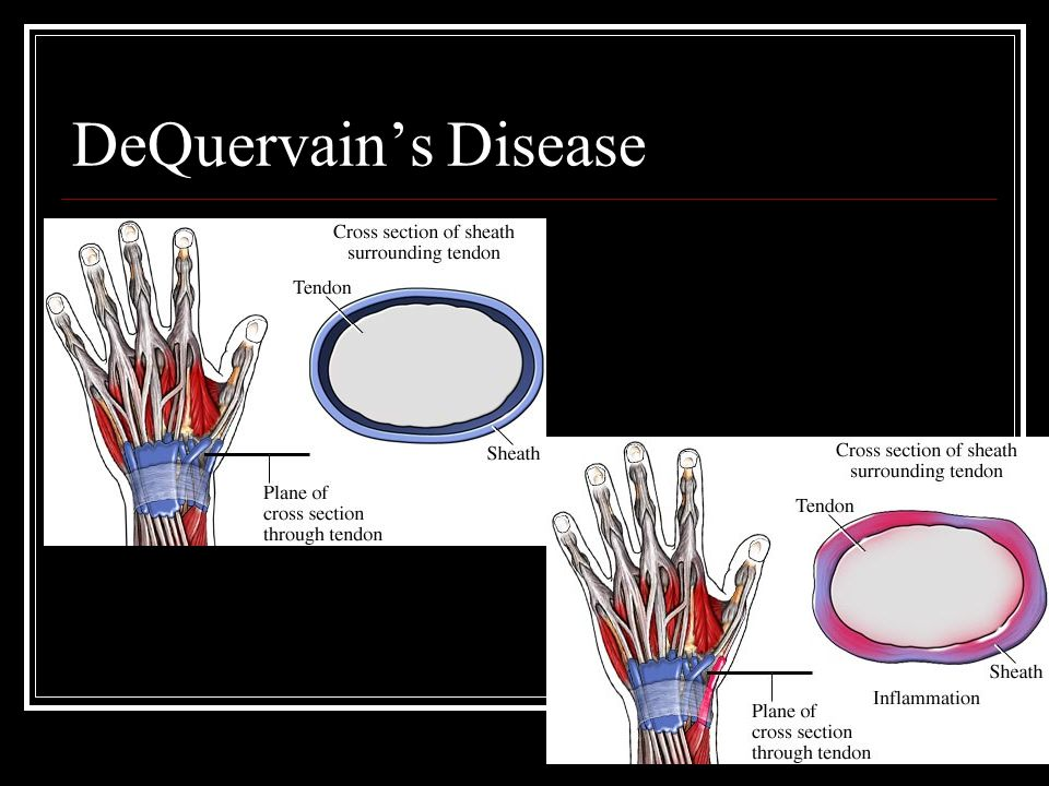DeQuervain's Disease