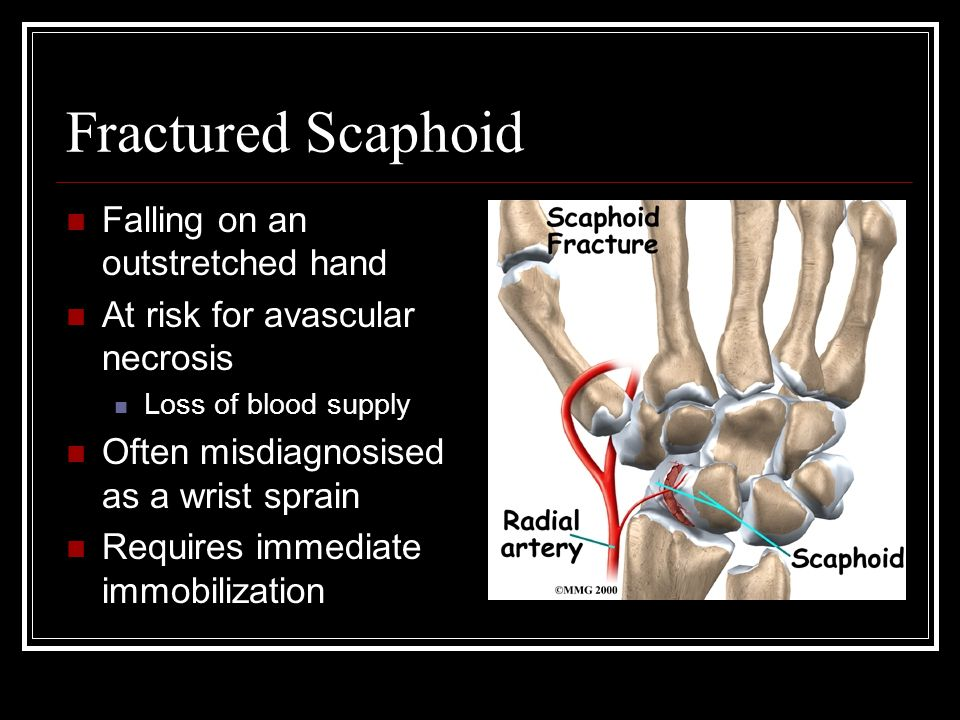 Fractured Scaphoid Falling on an outstretched hand