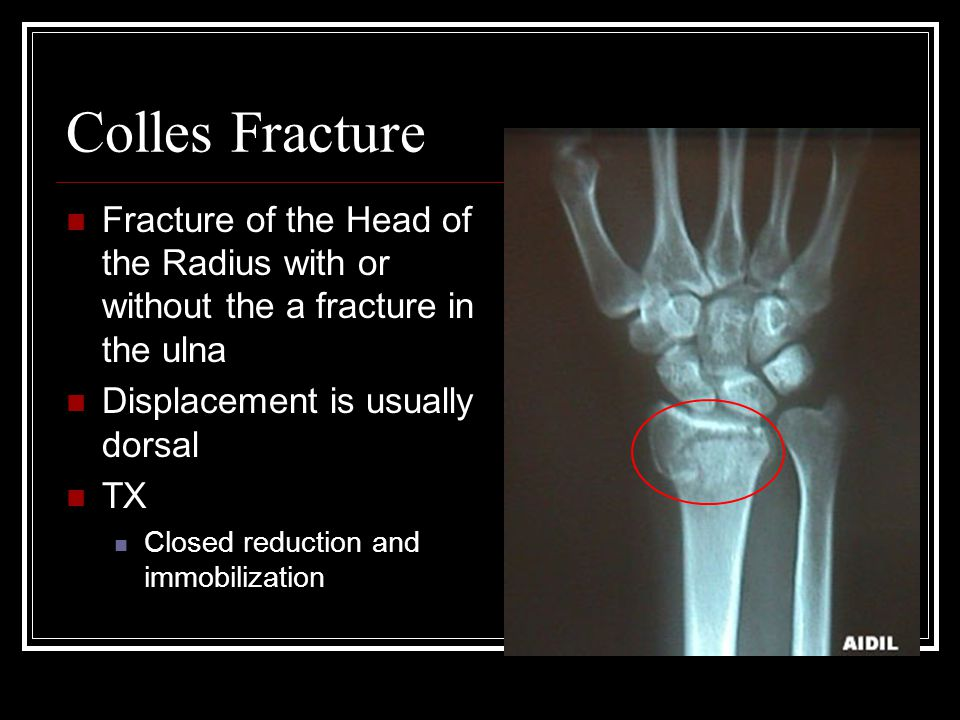Colles Fracture Fracture of the Head of the Radius with or without the a fracture in the ulna. Displacement is usually dorsal.