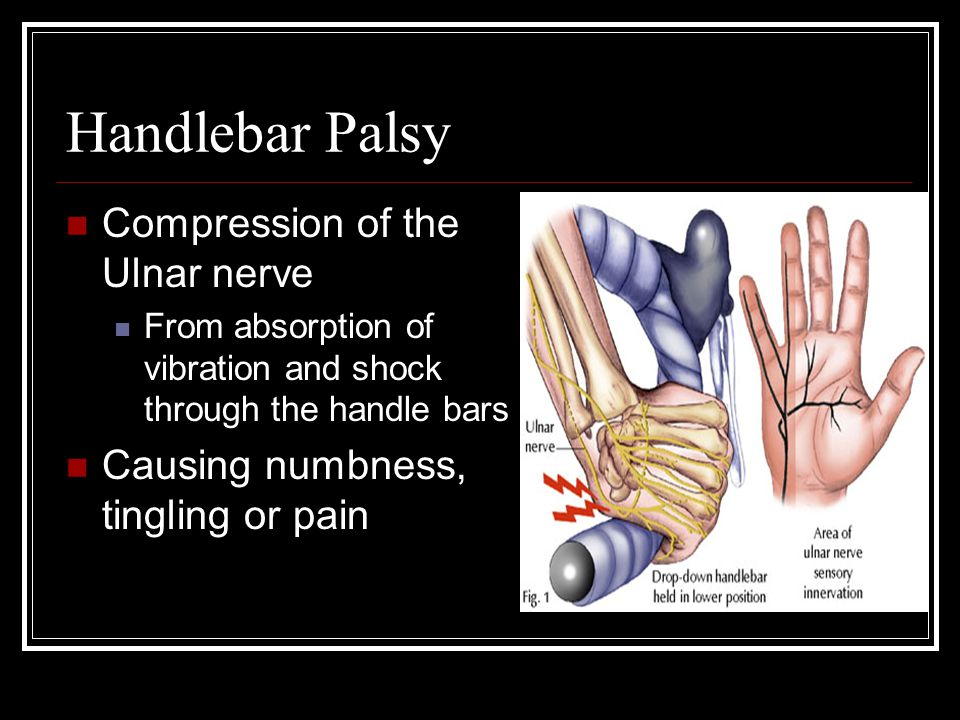 Handlebar Palsy Compression of the Ulnar nerve