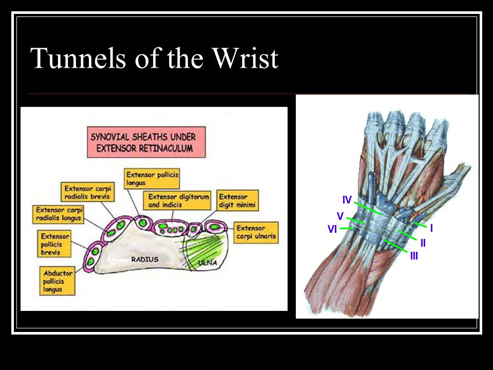 Tunnels of the Wrist