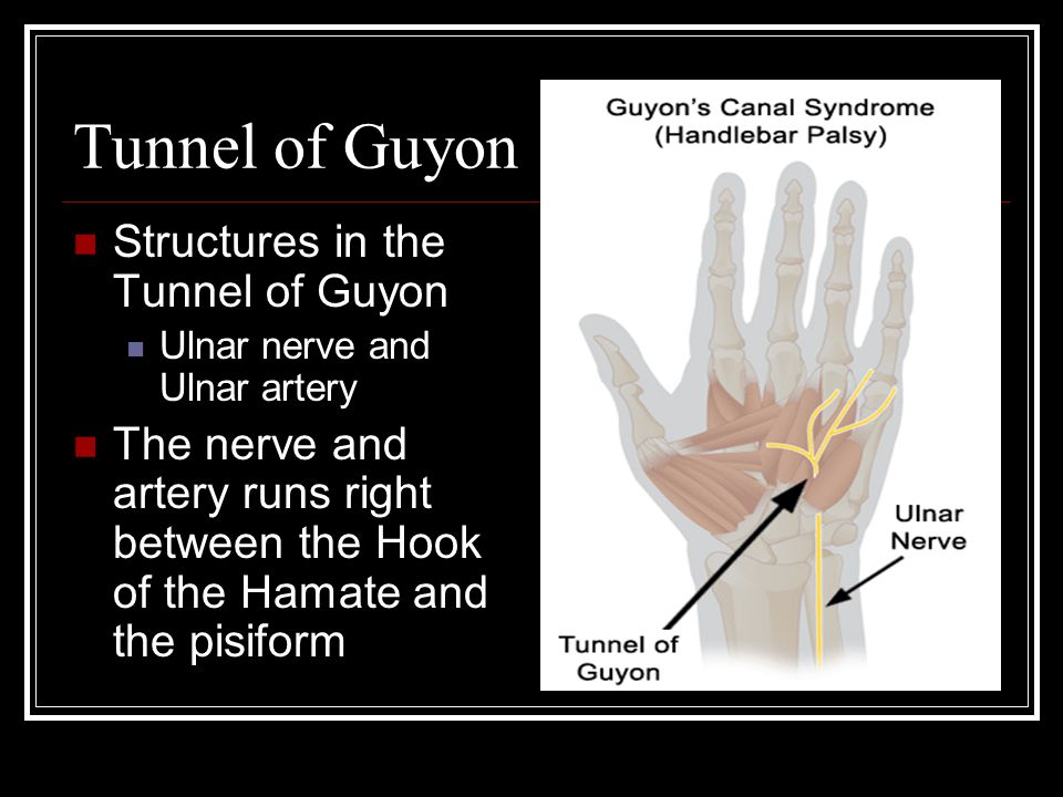 Tunnel of Guyon Structures in the Tunnel of Guyon