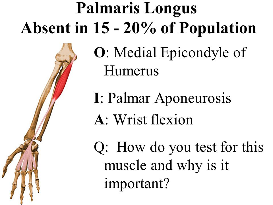 Palmaris Longus Absent in 15 - 20% of Population