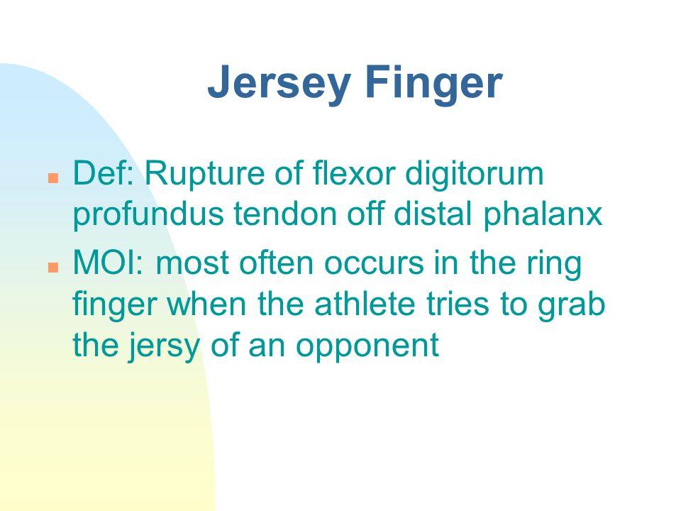 Jersey Finger Def: Rupture of flexor digitorum profundus tendon off distal phalanx.