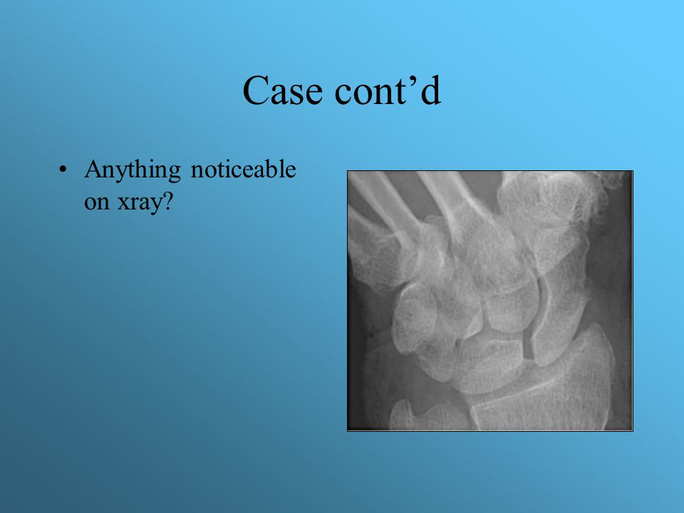 Case cont'd Anything noticeable on xray