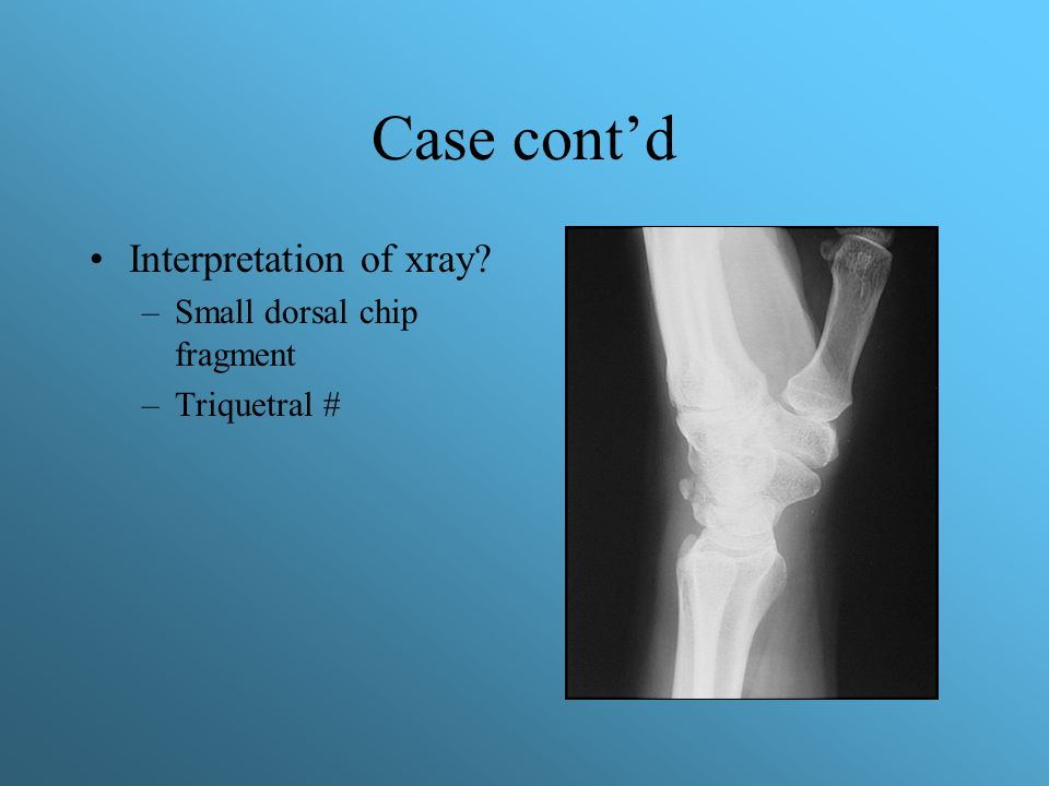 Case cont'd Interpretation of xray Small dorsal chip fragment