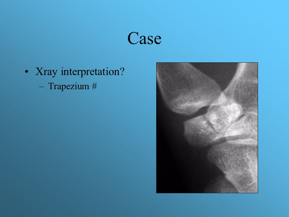 Case Xray interpretation Trapezium #