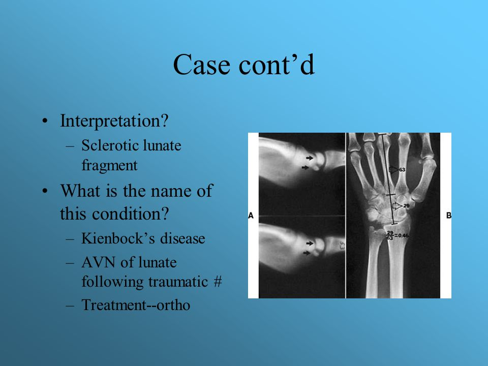Case cont'd Interpretation What is the name of this condition