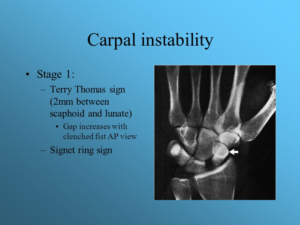 Carpal instability Stage 1: