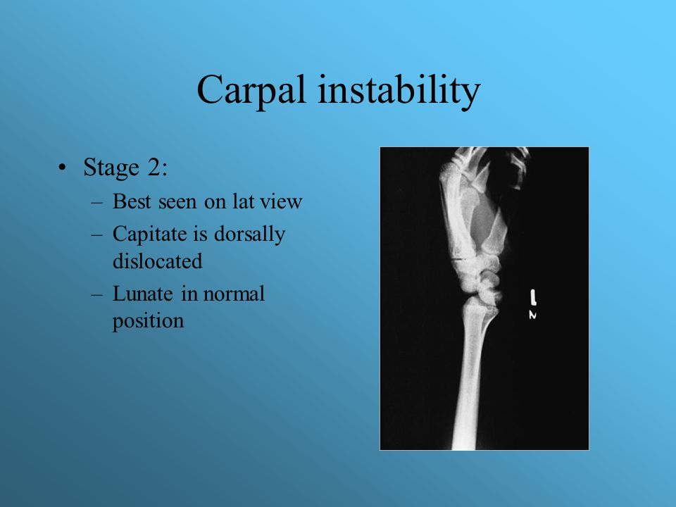 Carpal instability Stage 2: Best seen on lat view