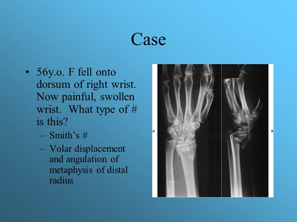 Case 56y.o. F fell onto dorsum of right wrist. Now painful, swollen wrist. What type of # is this