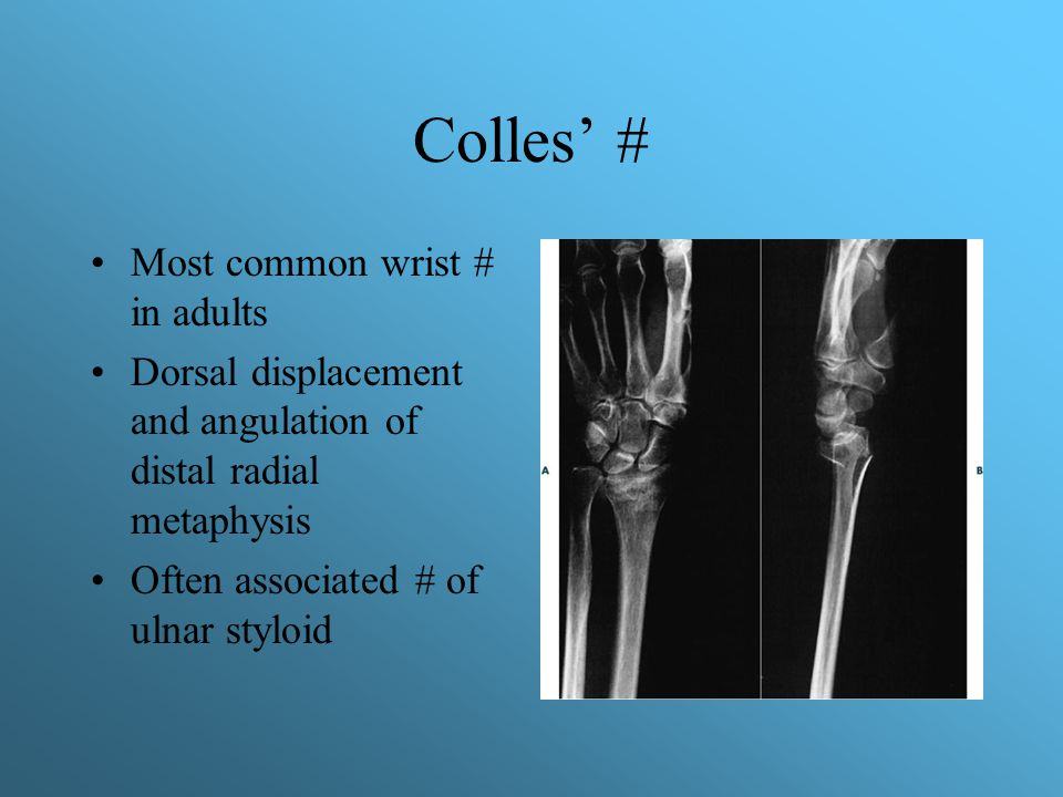 Colles' # Most common wrist # in adults