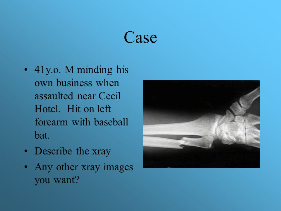Case 41y.o. M minding his own business when assaulted near Cecil Hotel. Hit on left forearm with baseball bat.