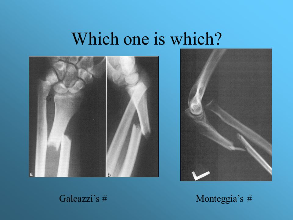 Which one is which Galeazzi's # Monteggia's #