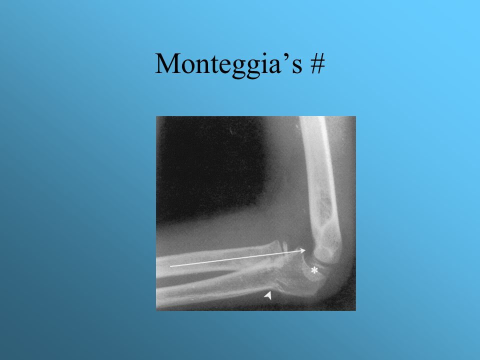 Monteggia's #