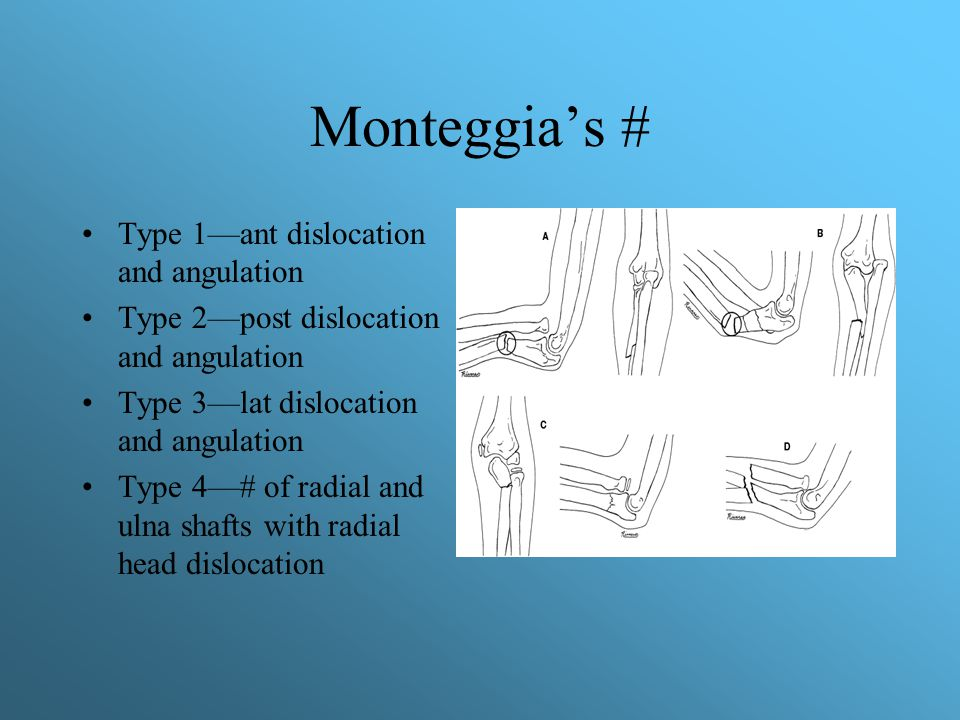 Monteggia's # Type 1—ant dislocation and angulation