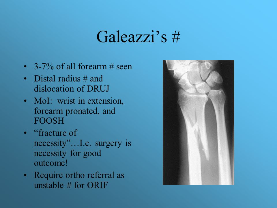 Galeazzi's # 3-7% of all forearm # seen
