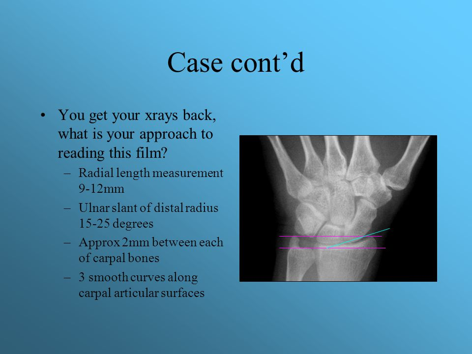 Case cont'd You get your xrays back, what is your approach to reading this film Radial length measurement 9-12mm.