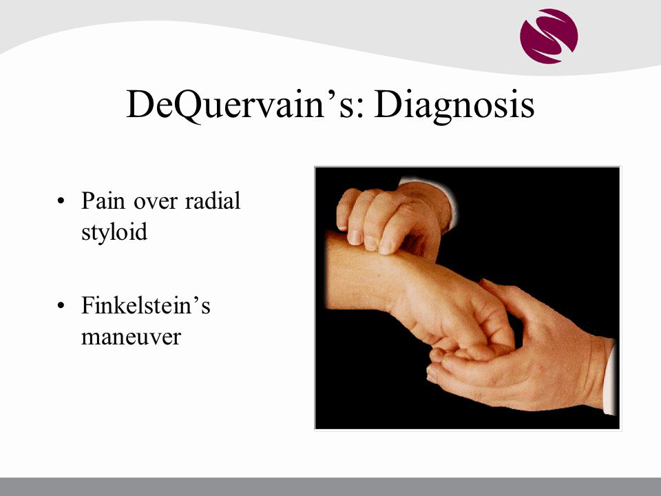 DeQuervain's: Diagnosis