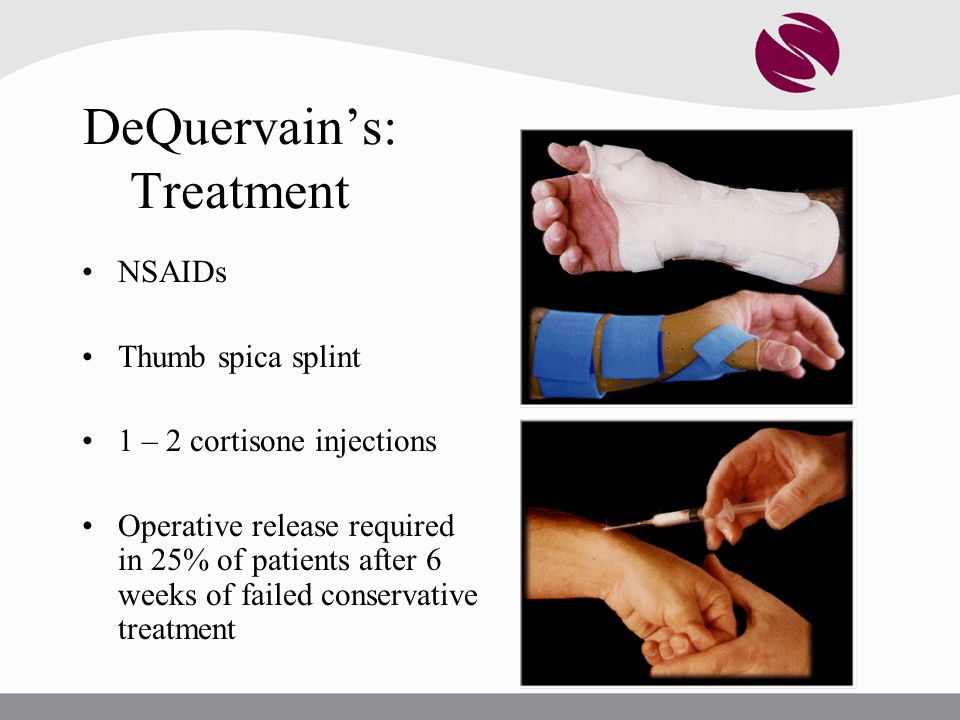 DeQuervain's: Treatment