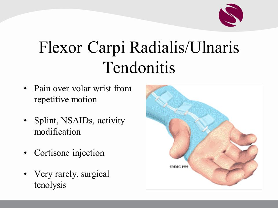 Flexor Carpi Radialis/Ulnaris Tendonitis