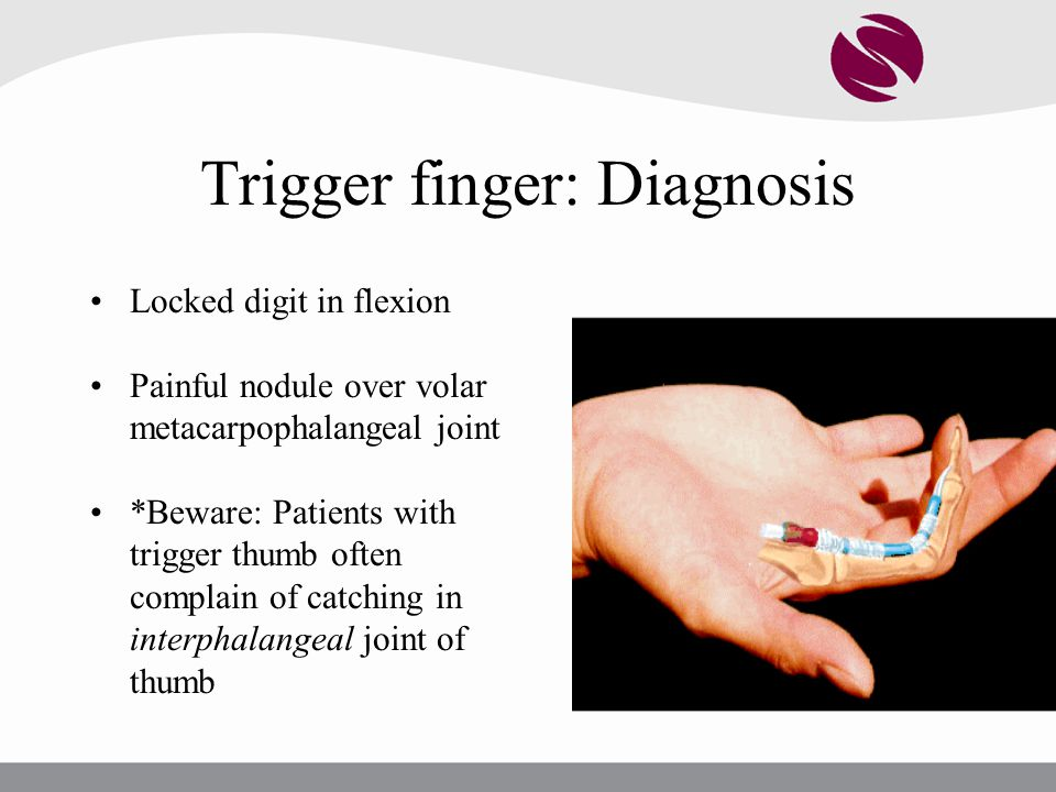 Trigger finger: Diagnosis