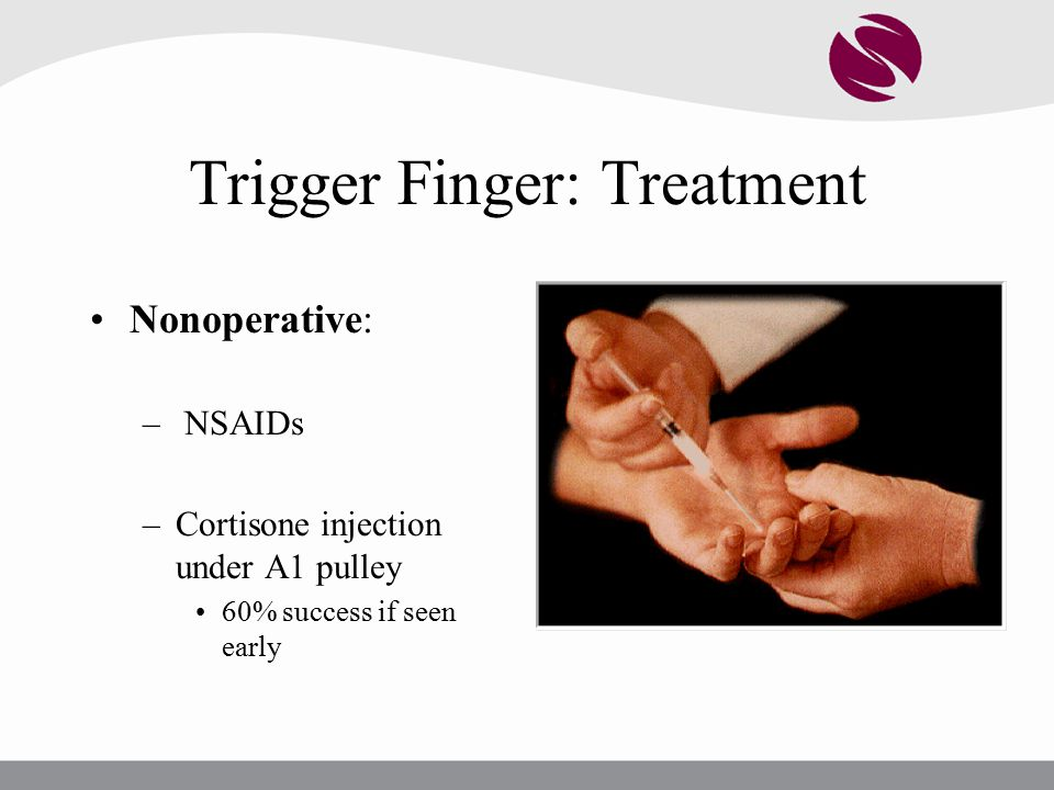 Trigger Finger: Treatment