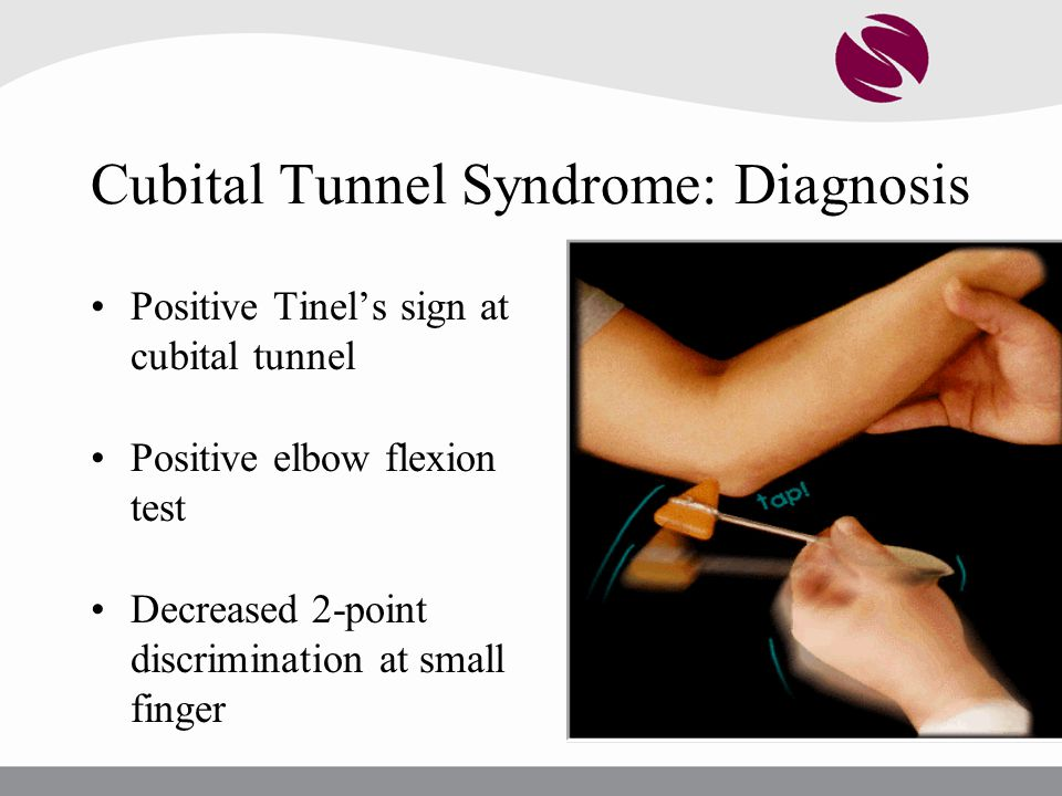 Cubital Tunnel Syndrome: Diagnosis
